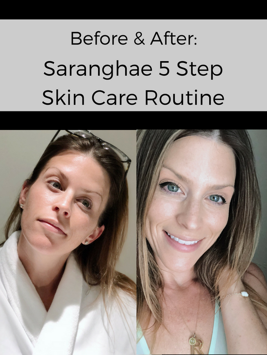 Saranghae Skin Care Review Before and After Photos